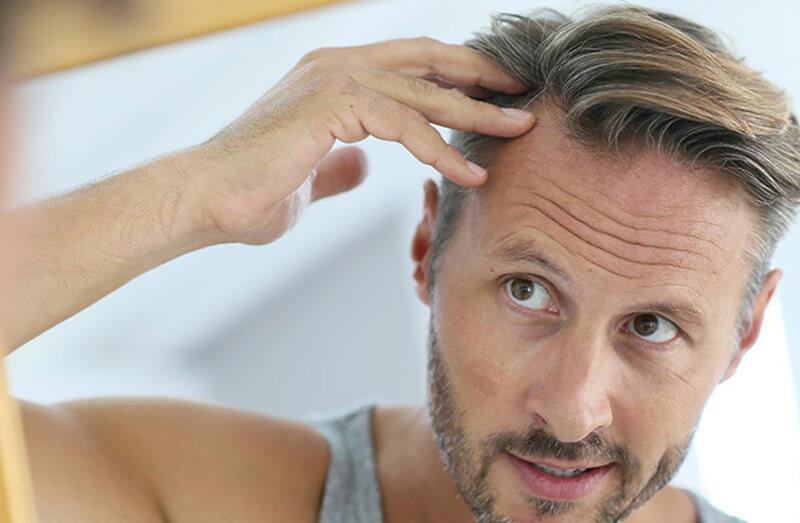 hair transplant 5