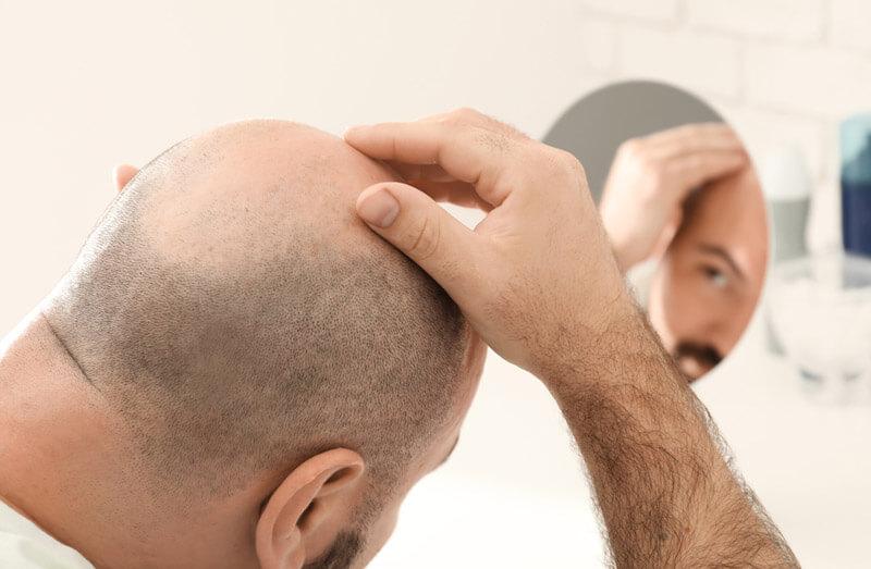 hair transplant 7